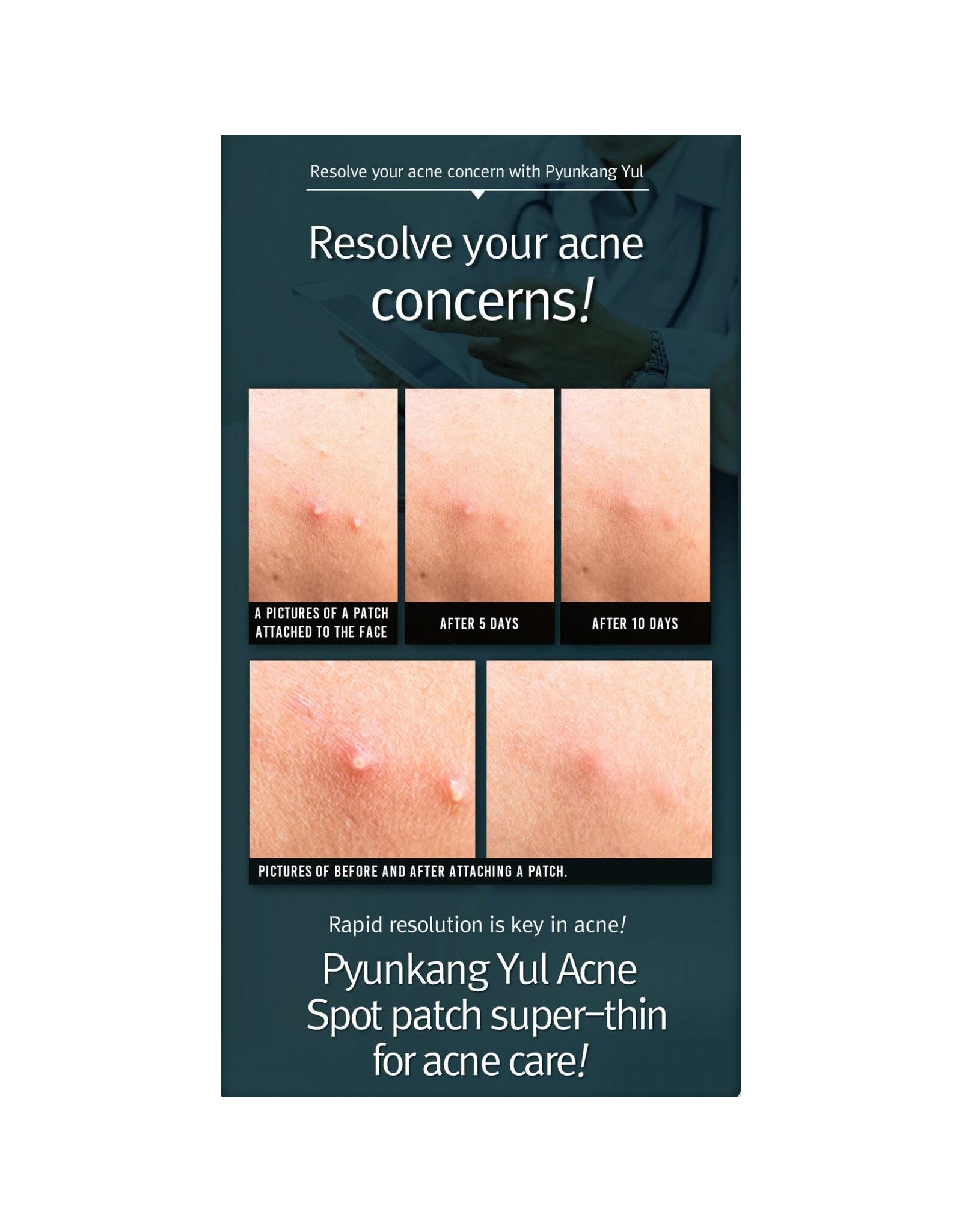 Pyunkang Pyunkang Yul Acne Spot Patch Super Thin 15Ea