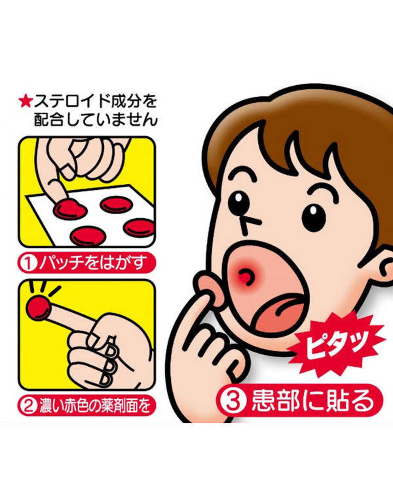 Taisho Taisho Stomatitis Patch 10 Patches