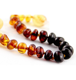 Medium Healing Amber Necklace