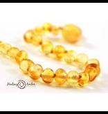 Medium Healing Amber Necklace